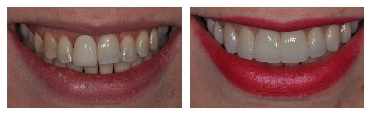 dental-implants-abington-before-after-1