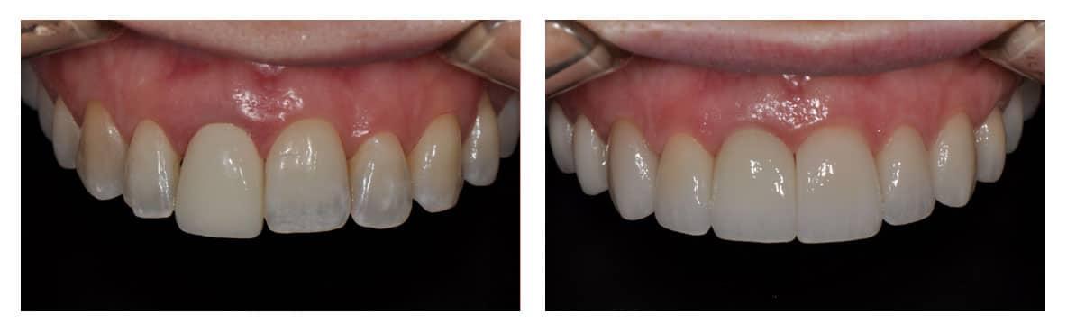 dental-implants-abington-before-after-2