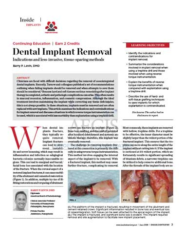dental-implant-removal-article