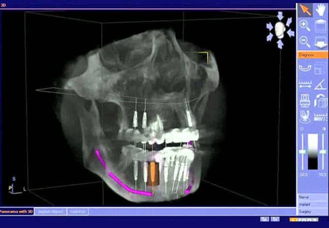 Laser Periodontics {city:uppercase_first_character}