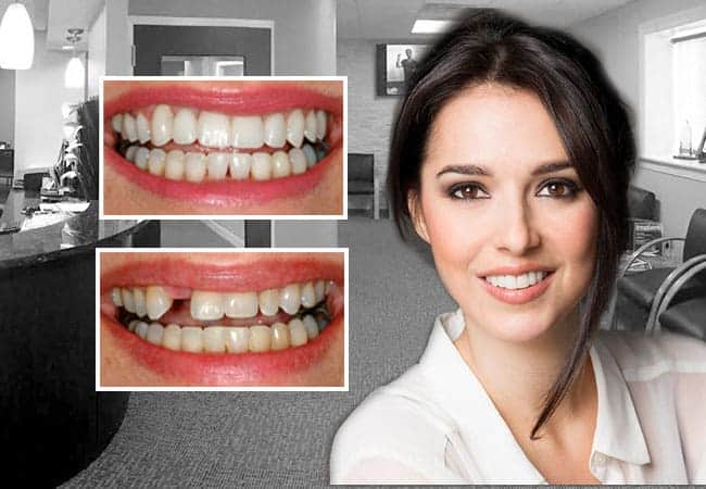 dental implants Ambler