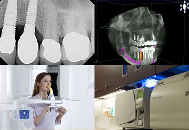 Computer Aided Dental Implants Abington 19001
