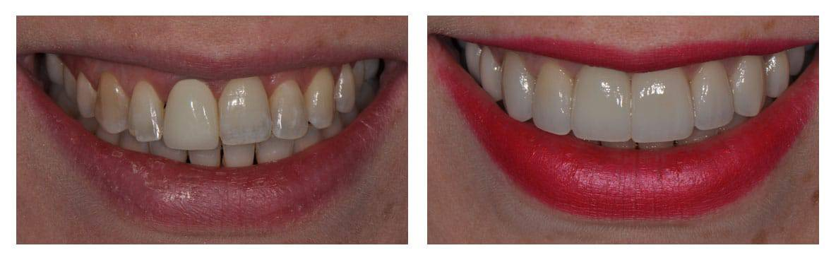 dental-implants-abington-before-after-1