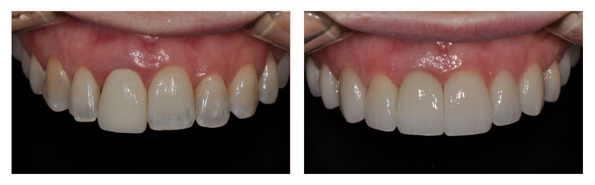 dental-implants-abington-before-after-2