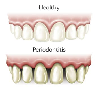 Periodontal Disease Warning Signs