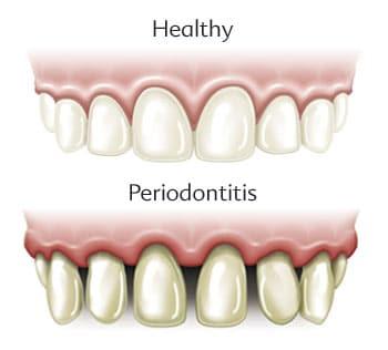 Periodontal Disease Warning Signs