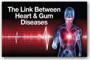 How Is Gum Disease Linked to Cardiovascular Disease?