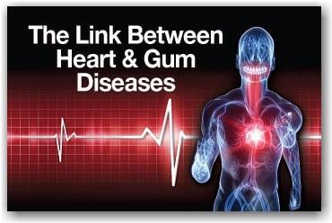 How Is Gum Disease Linked to Cardiovascular Disease?