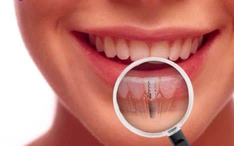 dental implants jenkintown