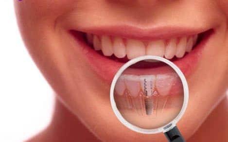 dental implants jenkintown