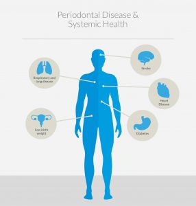 Targeting Your Immune System May be the Key to Preventing Gum Disease