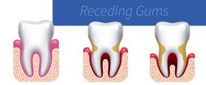 What Causes Receding Gums?