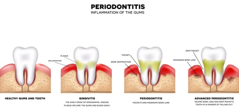 What Exactly is a Periodontist?