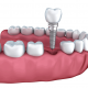 Why a Periodontist is Best for Dental Implants