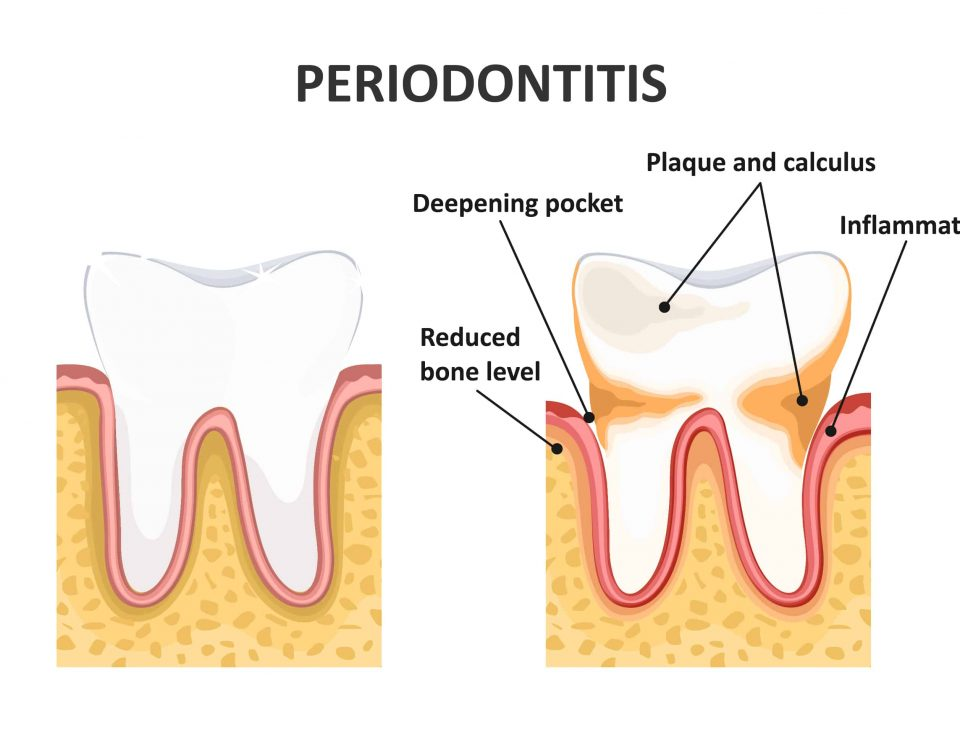 Treatments for Periodontal Disease to Save Your Teeth