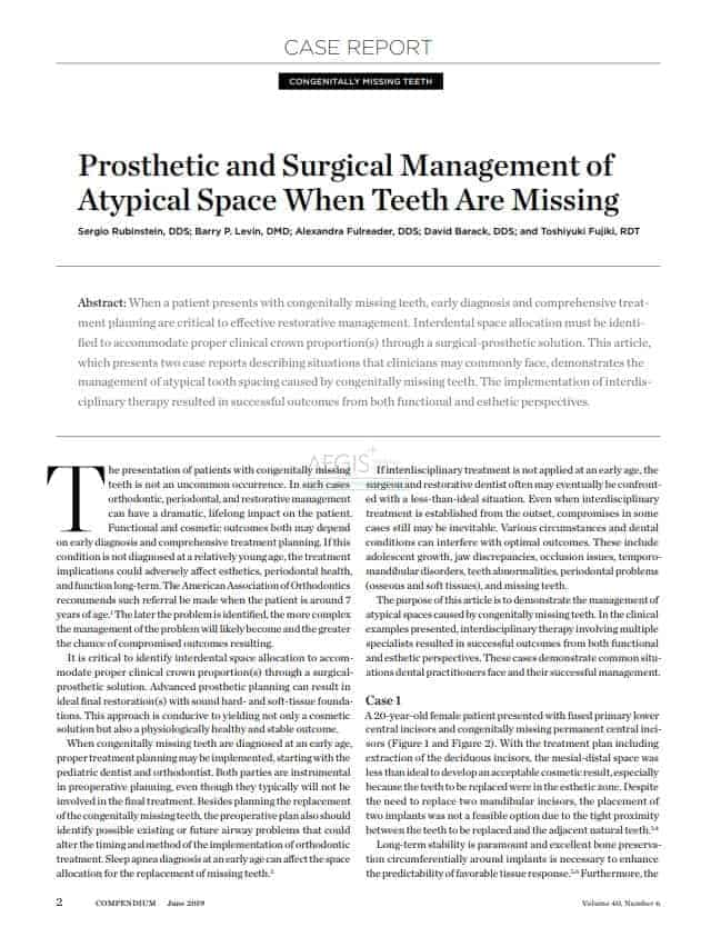 Prosthetic and Surgical Management of Atypical Space When Teeth Are Missing